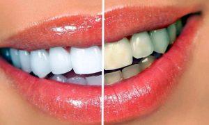 Как отбеливать зубы в домашних условиях?